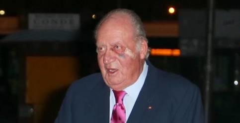 Foto de Ni un golpe, ni una caída: el motivo del ojo amoratado del Rey Juan Carlos